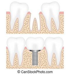 Implant dental con corona