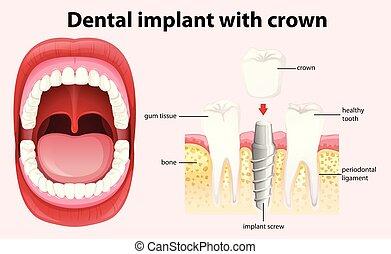 Implant dental con vector de corona
