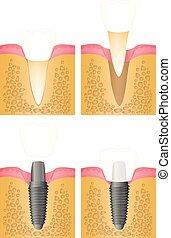 Implantación del diente