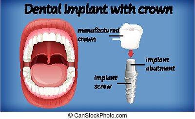implante, corona, dental