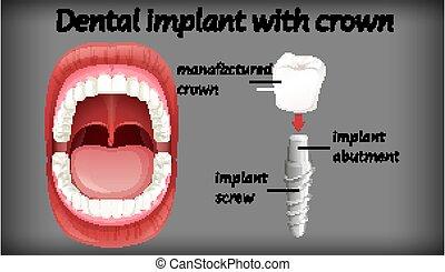 implante, dental, corona