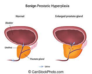 Inclina la hiperplasia prostatica