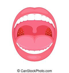 Infección bacterial de garganta, amigdalitis inflamación.