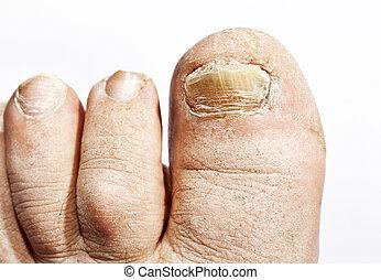 Infección de hongos en las uñas