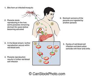 Infección de malaria