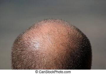 La cabeza del hombre calvo