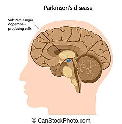 La enfermedad de Parkinson, eps8