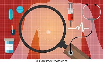 La medicina para el cáncer de mama para la anatomía médica cura la enfermedad