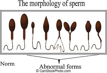 La morfología del esperma. Estructura normal y anormal de esperma