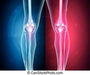 La rodilla se une saludable e insalubre