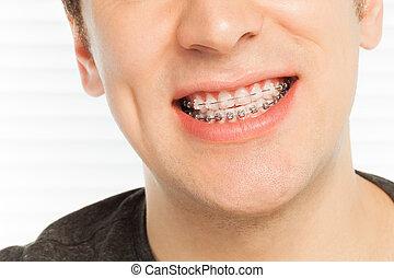 La sonrisa de un hombre feliz con casos ortodonciales