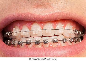 La sonrisa de un hombre hermoso con casos ortodonciales