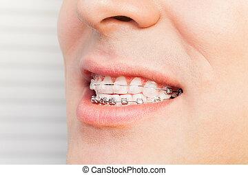 La sonrisa del hombre con aparato dental en los dientes