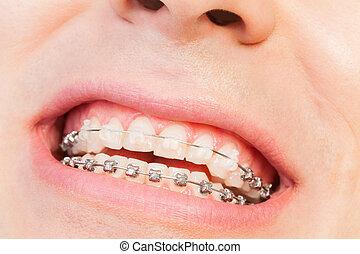 La sonrisa del hombre con ortodoncia