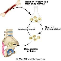 Las células madre de la médula ósea se usan para la regeneración ósea. Infográficos. Ilustración de vectores