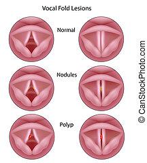 Lesiones de cuerdas vocales, eps8
