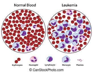 Leucemic versus sangre normal