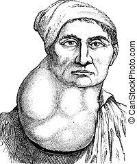 Limfoma o múltiples nódulos linfáticos en el cuello, ilustraciones grabadas. El diccionario de medicinas de Paul Labarthe, 1885.