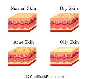 Los tipos de piel son íconos. Ilustración de acciones de Vector
