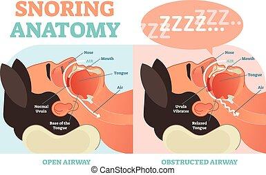 médico, vector, aire, ronquidos, anatomía, passage., diagrama