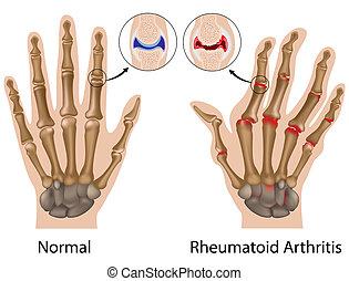 mano, artritis, rheumatoid, eps8