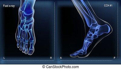 Medial y de primera vista x rayos de huesos del pie.