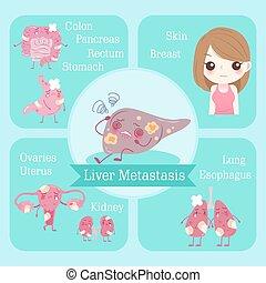 Metasis hepática cartoonica