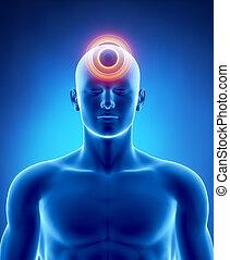 Migraña y concepto de dolor de cabeza