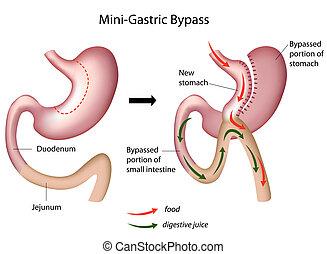 Mini cirugía de bypass gástrico, eps8