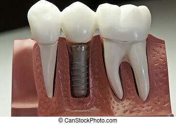 modelo, dental, implante, terminar