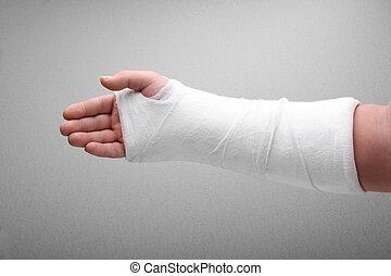molde, hueso, brazo, roto