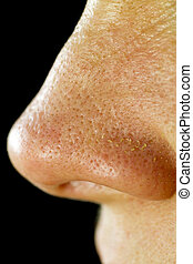 mujeres, nariz, poros, gordinflón