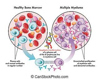 myeloma, múltiplo
