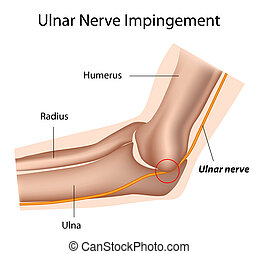 nervio, eps8, cubital, ulnar, túnel