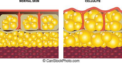 normal, cellulite, piel