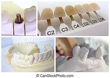 Objetos técnicos dentales