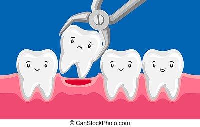 oral, diente, quitado, cavity., ilustración, fórceps