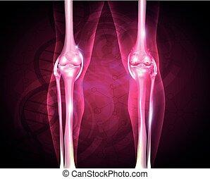 Osteoartritis, articulación dolorosa