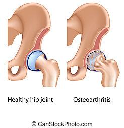 Osteoartritis de cadera, Eps8