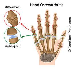 Osteoartritis de la mano, eps8