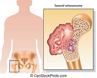 Osteosarcoma femoral