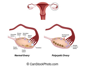 Ovario normal y policístico, eps8