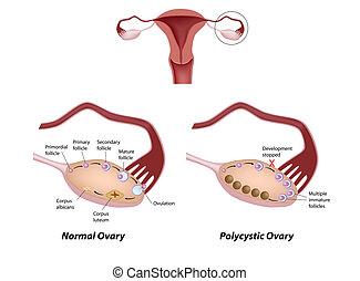 ovario, polycystic, eps8, normal