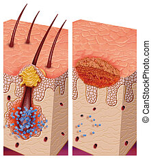 pathogenic, bacterias