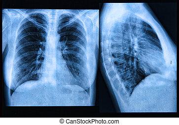 pecho, imagen, radiografía