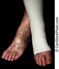phlebeurysm., elástico, leg., varicose, bandage., thrombophlebitis., veins.