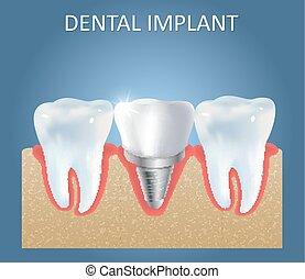 plantilla, dental, implante, diseño, vector, médico, cartel