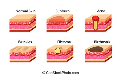 Problemas de piel establecidos. Ilustración de acciones de Vector.
