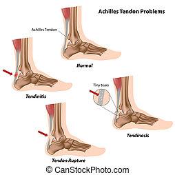 Problemas tendones de Aquiles,