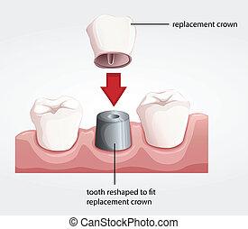 Procedimiento de corona dental
